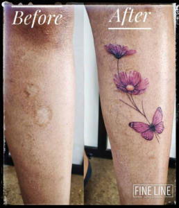 Scar cover-up tattoo