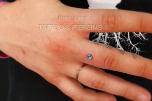 Dermal on finger