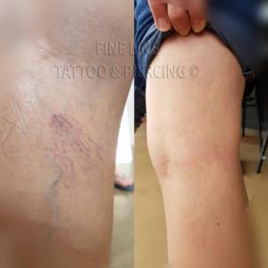 Spider vein removal tattoo