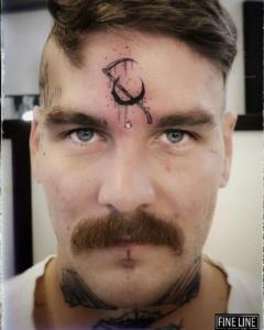 Forehead dermal