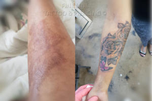 3rd degree burn cover-up tattoo